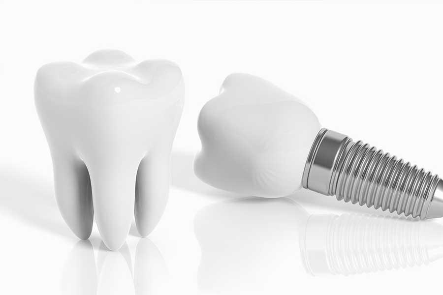 Implantologie – Zahnarzt Minden