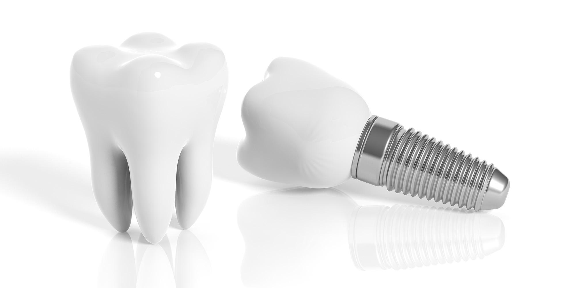 Zahnarzt Minden | Leistung: Implantologie