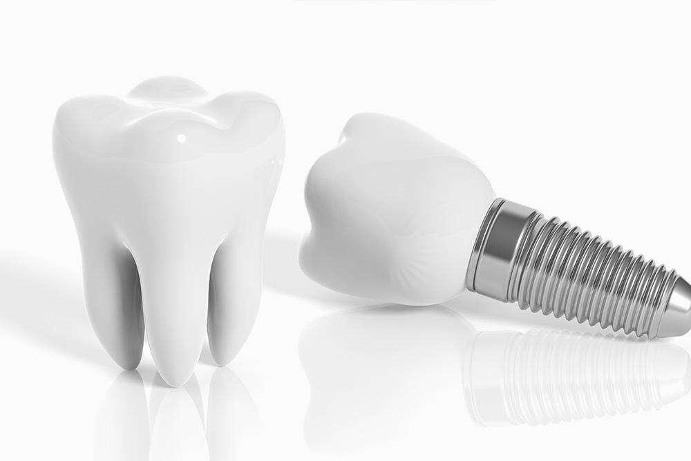 Zahnarzt Minden – Leistung: Implantologie