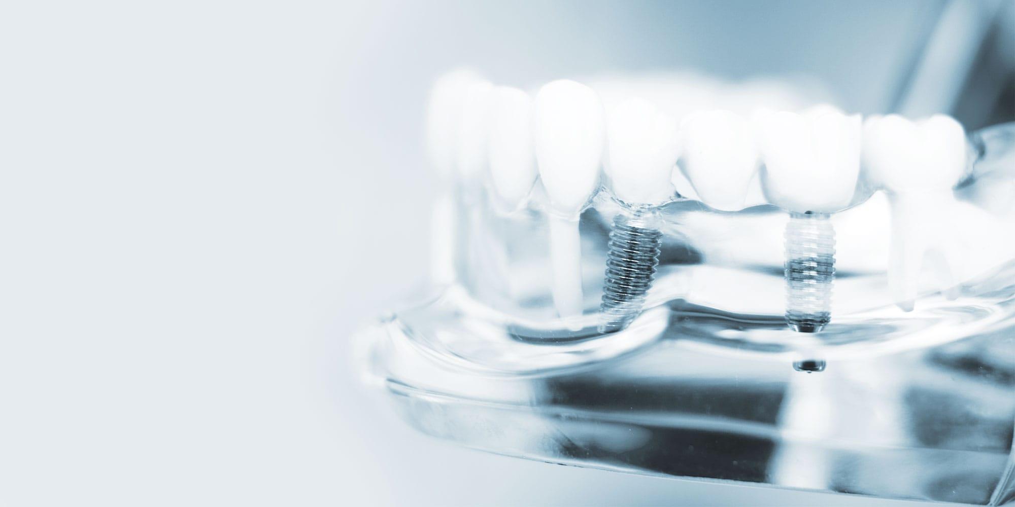 Zahnarzt Minden | Bartmann | 3D