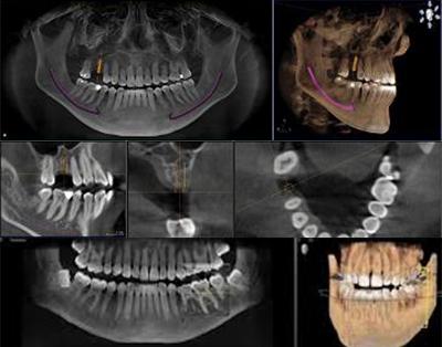 Zahnarzt Minden 3D Implantologie Bartmann