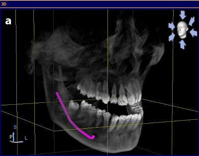 3D-Implantologie Minden Zahnarzt Bartmann