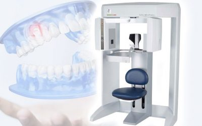 DVT/ 3D Röntgentechnologie
