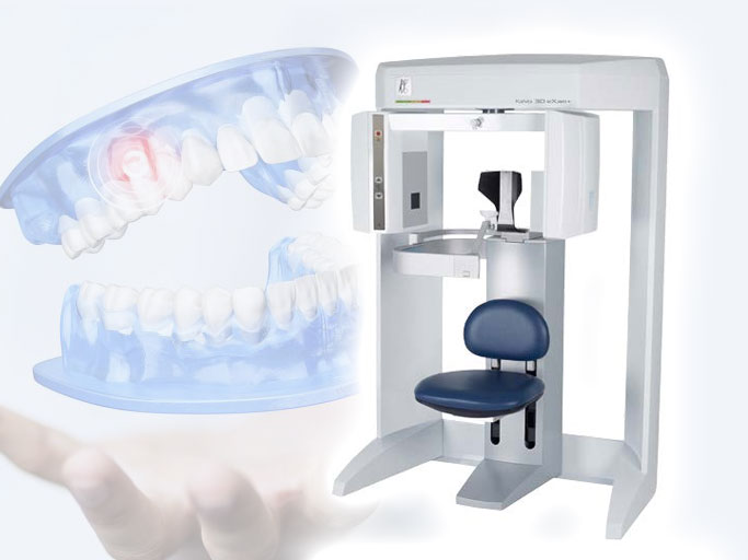 Zahnarzt Minden – Neue 3D Röntgen Technologie