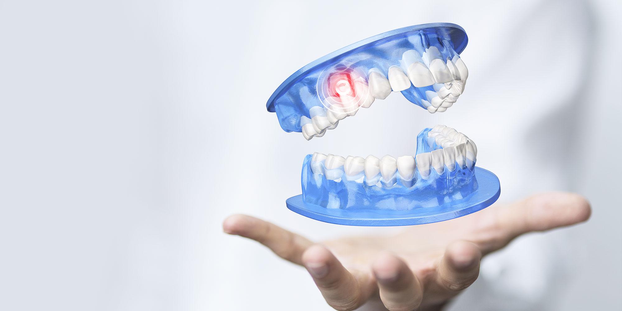 Zahnarzt Minden Digitale Volumentomographie